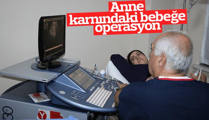 Anne karnındaki bebeğe operasyon