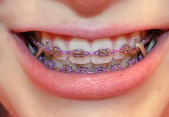 Ortodonti Yaptırmak İçin En Uygun Yaş